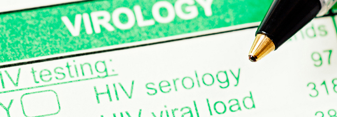 Detail of an HIV Test form. © RapidEye/Eyestockphoto